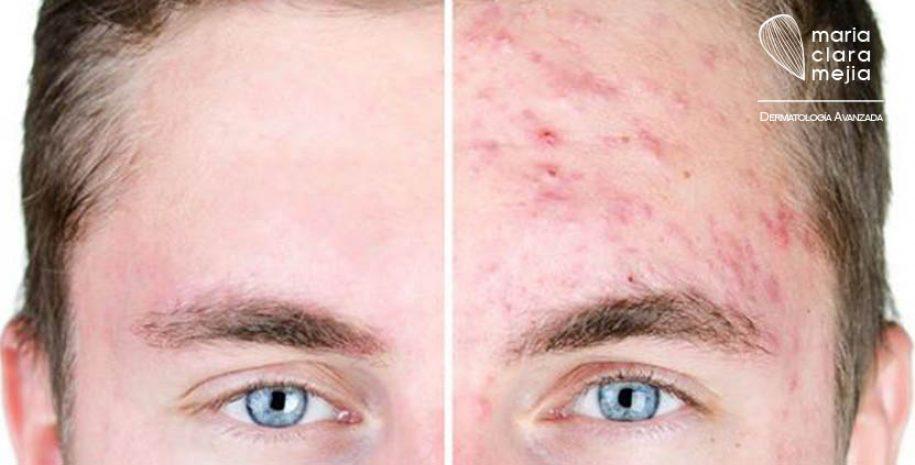 Descubra las cirugias para el Rejuvenecimiento Facial en