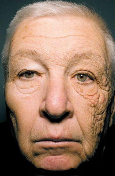 dermatoheliosis