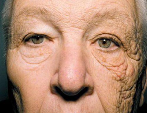 ¿Qués es la dermatoheliosis?